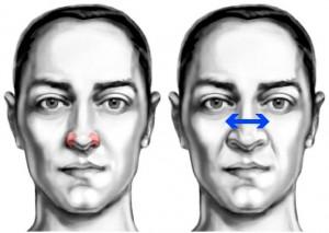AD38 dilatador de fosas nasales